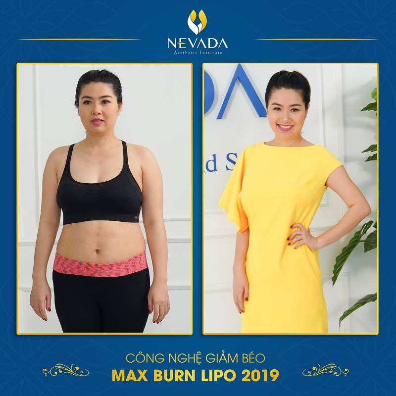Lê Khánh tự tin hơn sau khi giảm béo bằng công nghệ Max Burn Lipo