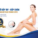 Giảm mỡ bắp tay, bắp chân CN Max Burn Lipo không cần phẫu thuật