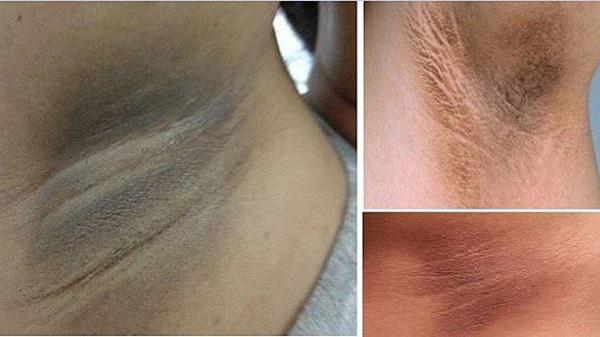triệt lông nách có ảnh hưởng gì không, triệt lông nách có hại không, tác hại của triệt lông nách, triệt lông nách vĩnh viễn có hại không, triệt lông nách có hại gì không, tác hại triệt lông nách, nhổ lông nách có ảnh hưởng gì không, triệt lông có hại không, triệt lông vĩnh viễn có hại gì không, tác hại của triệt lông vĩnh viễn, tẩy lông có hại không, triệt lông vĩnh viễn có hại không, lông nách có tác dụng gì