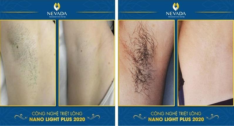 công nghệ triệt lông nano light, triệt lông bằng công nghệ nano light có tốt không, triệt lông bằng công nghệ nano light, nano light triệt lông, công nghệ nano light triệt lông