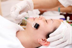 Bật mí cách trị sẹo lõm sau khi bị thủy đậu dễ thực hiện