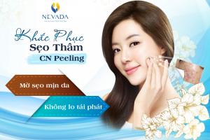 Khắc phục sẹo thâm công nghệ Peeling: Mờ sẹo mịn da, không lo tái sẹo