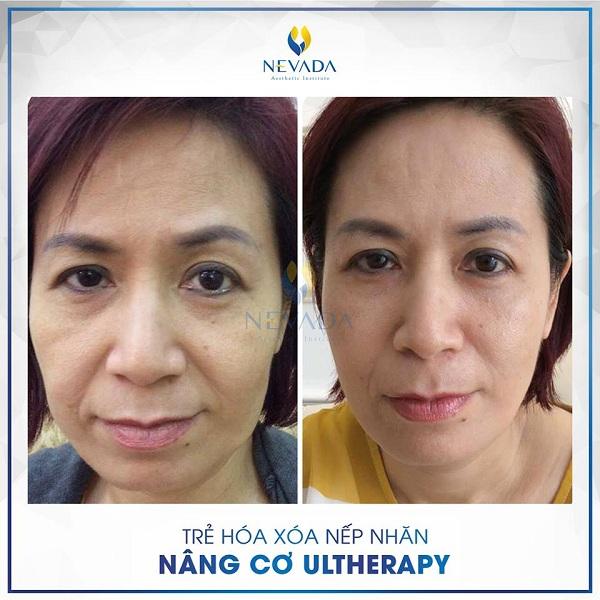 nâng cơ ultherapy, nâng cơ ultherapy có tốt không, nâng cơ mặt ultherapy, máy nâng cơ ultherapy, nâng cơ bằng ultherapy, căng da nâng cơ ultherapy, nâng cơ mặt bằng ultherapy