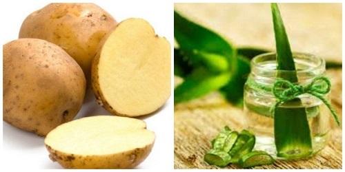triệt lông bằng khoai tây