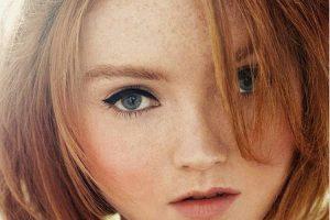 Trị tàn nhang Nevada – Da trắng sáng, không còn tàn nhang