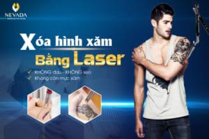 THÁNG VÀNG ƯU ĐÃI – OFF 50% ++ Dịch vụ xóa hình xăm bằng Laser: Không còn hình xăm, an toàn, không sẹo