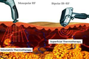 RF là gì? Tìm hiểu ứng dụng của sóng RF trong thẩm mỹ có hại không