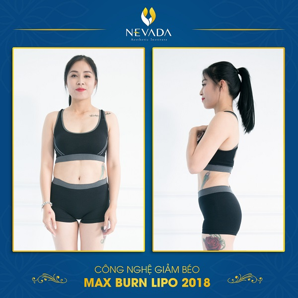 Trước và sau khi MC Hoàng Linh giảm béo