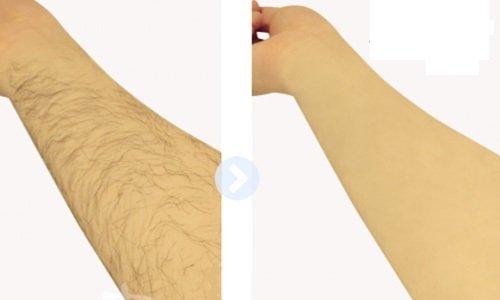 cách tẩy lông tay không mọc lại, cách tẩy lông tay tự nhiên không mọc lại, cách tẩy lông tự nhiên không mọc lại, cách tẩy lông hiệu quả không mọc lại, cách tẩy lông không mọc lại, cách tẩy lông chân không mọc lại, cách triệt lông vĩnh viễn không mọc lại, cách tẩy lông chân tại nhà không mọc lại, cách làm lông không mọc lại, cách tẩy lông lâu mọc lại, làm sao để lông ko mọc lại,