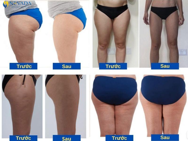 cách giảm mỡ đùi nhanh và hiệu quả tốt nhất, giảm béo đùi