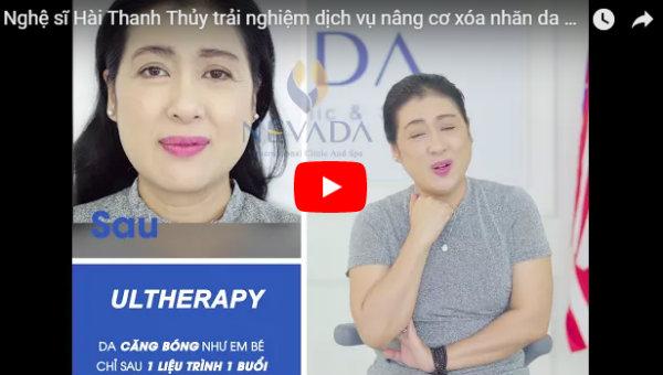 Cảm nghĩ của nghệ sĩ hài Thanh Thủy về dịch vụ nâng cơ Ultherapy