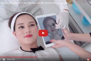 Livestream cận cảnh quá trình nâng cơ Ultherapy của MC Huyền Châu