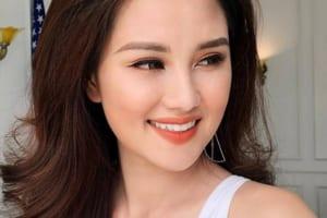 """Nâng cơ trẻ hóa da Ultherapy giúp MC Huyền Châu """"trẻ mãi không già"""""""