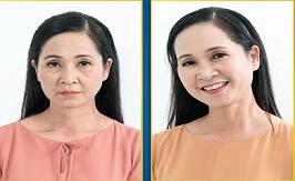 NSND Lan Hương Nâng Cơ Ultherapy
