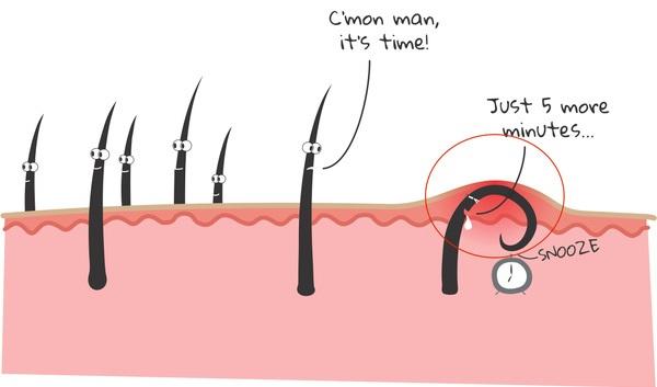 Cách tẩy lông toàn thân tự nhiên