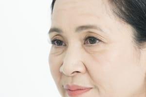 Căng da mặt không phẫu thuật bằng phương pháp nào tốt nhất?