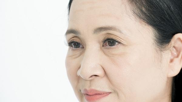 căng da mặt không phẫu thuật, căng da mặt không cần phẫu thuật, công nghệ căng da mặt không phẫu thuật, làm căng da mặt không cần phẫu thuật, phẫu thuật căng da mặt có đau không, cách căng da mặt không cần phẫu thuật