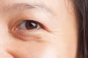 Chia sẻ 5 cách xóa nếp nhăn vùng mắt đơn giản hiệu quả tại nhà