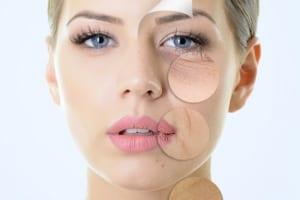 Giới thiệu cách xóa mờ nếp nhăn khóe miệng hiệu quả đến 5 năm