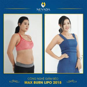 max burn lipo review, max burn lipo, max burn lipo 2018, công nghệ giảm béo max burn lipo, giảm béo max burn lipo, công nghệ max burn lipo là gì, công nghệ max burn lipo, max burn lipo là gì, giảm béo max burn lipo có tốt không, công nghệ max burn lipo 2018, max burn lipo có tốt không, công nghệ giảm mỡ max burn lipo, max burn lipo giá bao nhiêu, máy max burn lipo, giam beo max burn lipo, giảm béo bằng công nghệ max burn lipo, burn lipo có tốt không, max burn, phương pháp max burn lipo, công nghệ giảm béo