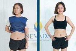 Đẩy tinh chất giảm béo Nevada