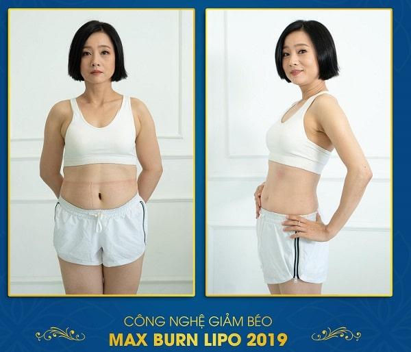 Kết quả giảm cân bằng công nghệ Max Burn Lipo