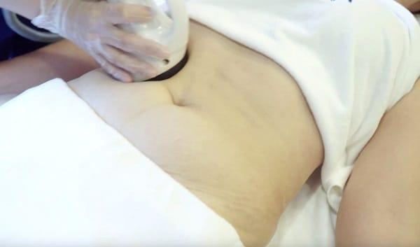 Cách giảm cân hồi dáng
