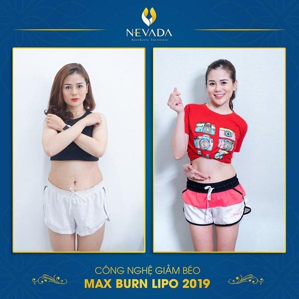 Kết quả giảm béo công nghệ Max Burn Lipo