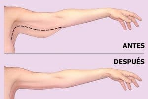 Đánh bật mỡ bằng cách giảm mỡ bắp tay cấp tốc chỉ trong 3 ngày