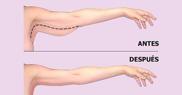 Giảm béo bắp tay cấp tốc