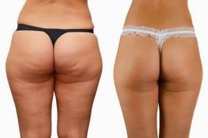 Cách giảm béo mông trong 1 tuần giúp mông săn chắc, đùi thon gọn