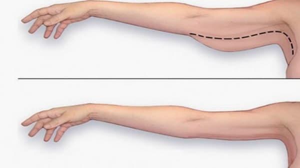 Giảm mỡ bắp tay trong 1 tuần, Bài tập giảm mỡ bắp tay trong 1 tuần, Cách làm bắp tay nhỏ lại trong 1 tuần, cách giảm mỡ bắp tay trong 1 tuần, giảm mỡ tay trong 1 tuần, giảm bắp tay trong 1 tuần, Ngón tay thon gọn trong 1 tuần