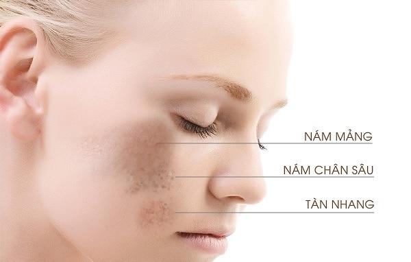 cách trị nám da tại nhà, cách trị nám da tại nhà đơn giản, cách trị nám da tại nhà nhanh nhất, cách trị nám da tại nhà tự nhiên, cách chữa nám da tại nhà, điều trị nám da tại nhà, phương pháp trị nám da tại nhà, cách trị nám da mặt tại nhà, cách trị nám sạm da tại nhà