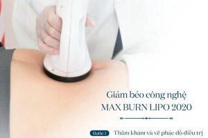 Review công nghệ giảm béo Max Burn Lipo webtretho có hiệu quả không từ người dùng