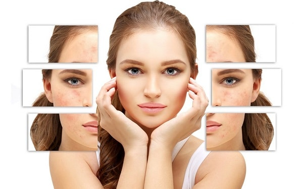 chăm sóc da mặt đúng cách tuổi dậy , cách chăm sóc da mặt đúng cách ở tuổi dậy thì