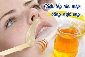 Tiết lộ 5 cách tẩy ria mép bằng mật ong, cách cuối cùng hiệu quả cao bất ngờ