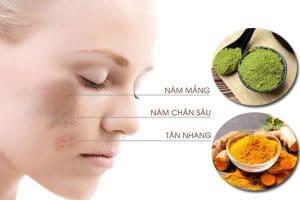 Cách trị nám da mặt bằng thiên nhiên – Bí quyết chăm sóc da áp dụng ngay tại nhà