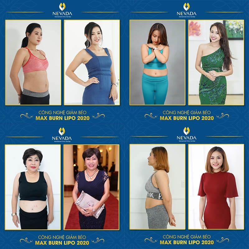 công nghệ giảm béo tốt nhất hiện nay, công nghệ giảm béo
