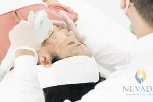 Nâng cơ Ultherapy tại Nevada có gì đặc biệt mà hút khách như vậy?