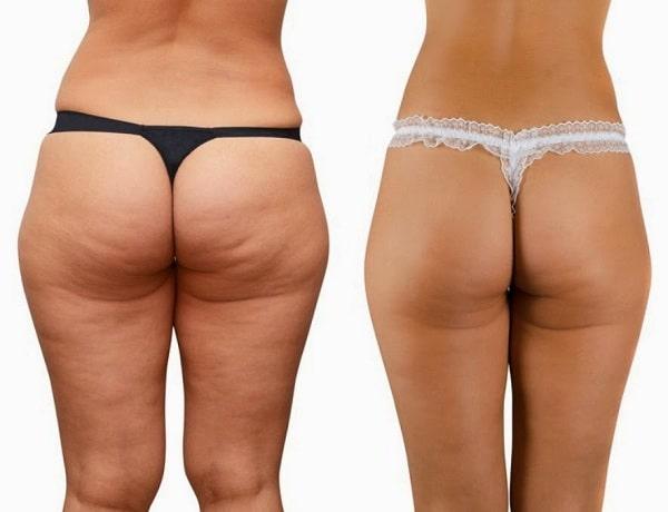 giảm mỡ mông, giảm mỡ mông hiệu quả, giảm mỡ mông cấp tốc, giảm mỡ mông nhanh nhất, cách giảm béo mông, giảm béo mông, cách giảm béo mông, cách giảm béo mông nhanh nhất