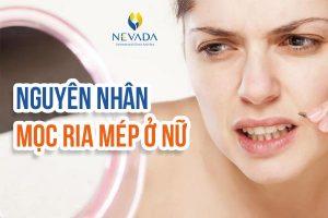"""Nguyên nhân mọc ria mép ở nữ? Bật mí cách tẩy ria mép """"xóa sổ"""" râu ria chỉ trong 10 phút"""