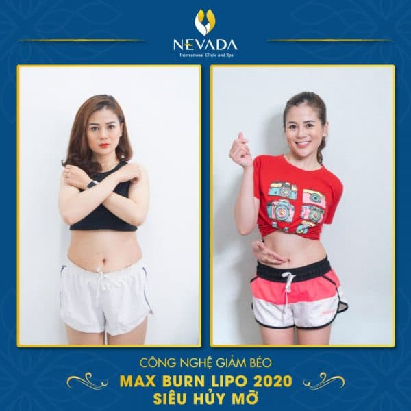 Hiệu quả giảm béo Max Burn Lipo 2020 siêu hủy mỡ cao