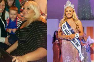 Giảm shock 60kg và trở thành hoa hậu nước Anh sau khi vị hôn phu từ bỏ vì quá béo