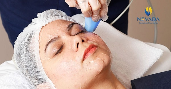 12 cách làm giảm béo mặt nhanh nhất - Khuôn mặt V line chỉ sau 1 tuần hiệu quả