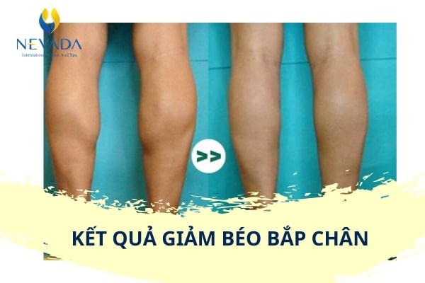 giảm mỡ chân nam, giảm mỡ bắp chân nam, giảm mỡ chân cho nam, cách giảm mỡ chân nam, cách giảm mỡ chân cho nam, giảm mỡ bắp chân cho nam, cách giảm mỡ bắp chân nam, cách giảm mỡ bắp chân cho nam