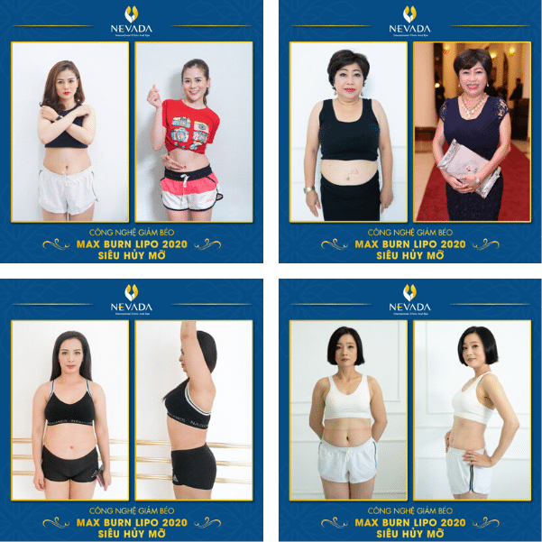 giảm 10kg trong 1 tháng không tập thể dục, giảm 10kg trong 1 tháng webtretho, giảm 10kg trong 1 tháng sau sinh, giảm 10kg trong 1 tháng không dùng thuốc, giảm 10kg trong 1 tháng cho nữ, giảm 10kg trong 1 tháng hiệu quả, bài tập giảm 10kg trong 1 tháng, giảm 10kg trong 1 tháng không tập the dục, chế độ ăn giảm 10kg trong 1 tháng, bí quyết giảm 10kg trong 1 tháng, cách giảm 10kg trong 1 tháng, có thể giảm 10kg trong 1 tháng không, thực đơn giảm 10kg trong 1 tháng, cách để giảm 10kg trong 1 tháng, giảm 10kg một tháng, muốn giảm 10kg trong 1 tháng, làm sao giảm 10kg trong 1 tháng, làm sao để giảm 10kg trong 1 tháng, cô gái giảm 10kg trong 1 tháng, ăn gì để giảm 10kg trong 1 tháng, kinh nghiệm giảm 10kg trong 1 tháng, một tháng giảm 10kg, giảm cân nhanh 10kg trong 1 tháng, làm thế nào để giảm 10kg trong 1 tháng, phương pháp giảm 10kg trong 1 tháng, giam 10kg trong 1 thang, giảm 10kg trong vòng 1 tháng