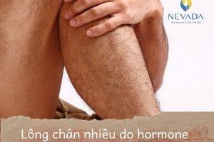 Con trai nhiều lông tay lông chân thì sao? Tại sao lông mọc nhiều ở nam giới?