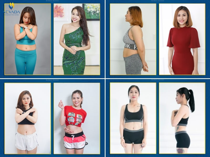 địa chỉ giảm cân an toàn, giảm béo ở thẩm mỹ viện nào tốt nhất, thẩm mỹ giảm mỡ bụng ở đâu tốt, địa chỉ giảm mỡ bụng uy tín, giảm béo ở spa nào tốt, thẩm mỹ viện giảm béo, thẩm mỹ viện giảm mỡ bụng uy tín, giảm mỡ bụng ở đâu uy tín, thẩm mỹ giảm mỡ bụng, giảm mỡ bụng ở đâu tốt nhất, thẩm mỹ giảm béo, thẩm mỹ viện giảm mỡ bụng, giảm béo ở đâu hiệu quả, giảm cân ở spa nào tốt, giảm béo ở đâu hiệu quả nhất, địa chỉ giảm béo uy tín, địa chỉ giảm béo, giảm béo ở đâu tốt nhất, giảm béo ở đâu tốt, giảm cân ở đâu hiệu quả, dia chi giam can an toan, địa chỉ mua máy giảm béo uy tín tại hà nội, dia chi giam can hieu qua, địa chỉ thẩm mỹ viện giảm mỡ bụng uy tín tại Hà Nội và thành phố Hồ Chí Minh