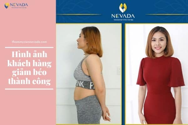 các cách giảm cân sau sinh, cách giảm cân cho bà mẹ sau sinh, cách giảm cân cho mẹ sau sinh, cách giảm cân cho phụ nữ sau sinh, cách giảm cân sau sinh, cách giảm cân sau sinh mà vẫn nhiều sữa, cách giảm cân sau sinh mổ, chế độ giảm cân sau sinh, giảm cân cho bà mẹ sau sinh, giảm cân cho mẹ sau sinh, giảm cân cho phụ nữ sau sinh, giảm cân lợi sữa cho mẹ sau sinh, giảm cân sau sinh, giảm cân sau sinh không ảnh hưởng đến sữa, giảm cân sau sinh mà vẫn nhiều sữa, giảm cân sau sinh mổ, giảm cân sau sinh mổ mà vẫn nhiều sữa, mẹ bỉm sữa giảm cân sau sinh, mẹ sau sinh giảm cân, mẹ sau sinh muốn giảm cân, mẹo giảm cân sau sinh, những cách giảm cân sau sinh, phương pháp giảm cân sau sinh, cách giảm cân mà vẫn có sữa cho con bú