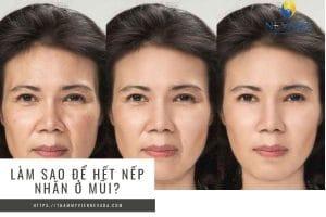 Làm sao để hết nếp nhăn ở mũi? Truy lùng những cách xoá nhăn mũi siêu HOT 2020